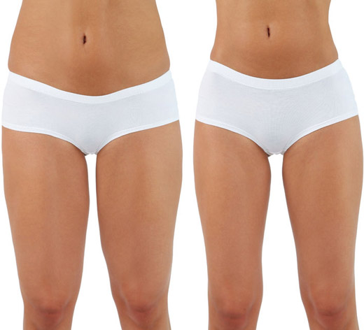 Liposuction Dayton OH