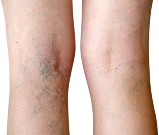 Vein Therapy Varicose Vein Treatment Spider Vein Removal Dayton OH