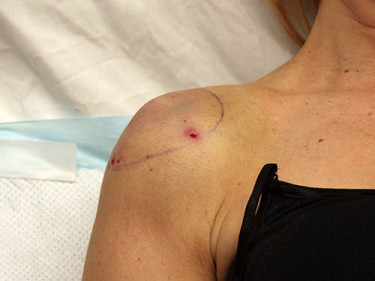 Laser Liposuction Dayton OH Patient 35 After