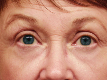 Laser Treatments Dayton OH Patient 36 After