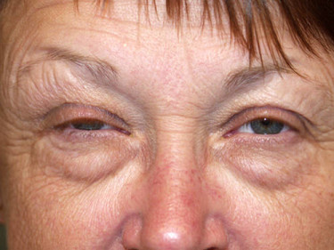 Laser Treatments Dayton OH Patient 36 Before