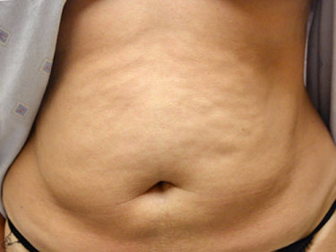 Liposuction Dayton OH Patient 39 Before