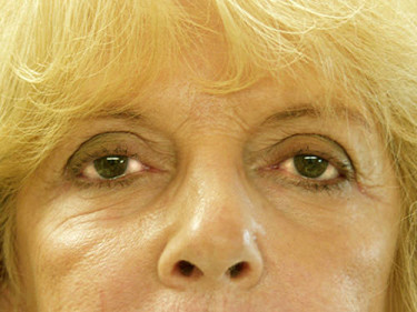Blepharoplasty Dayton OH Patient 11 After