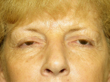 Blepharoplasty Dayton OH Patient 11 Before