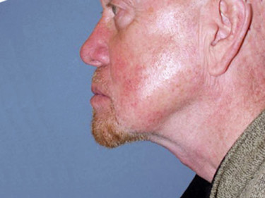Neck Lift Dayton OH Patient 68 After