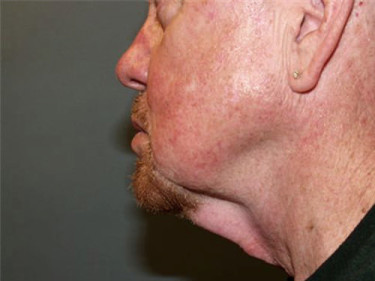 Neck Lift Dayton OH Patient 68 Before