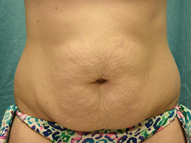 Tummy Tuck Dayton OH Patient 74 Before