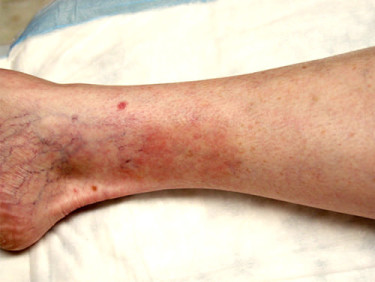 Vein Therapy Dayton OH Patient 76 After