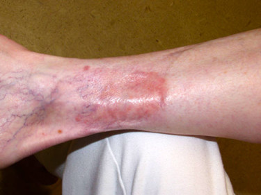 Vein Therapy Dayton OH Patient 76 Before