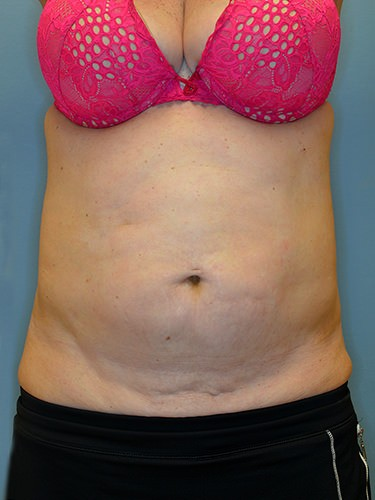 Tummy Tuck Dayton OH Patient 94 Before